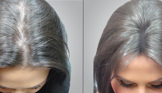 صورة كيف تتم عملية زراعة الشعر ؟