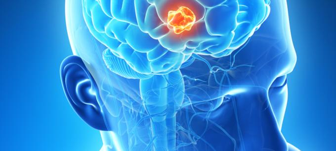 صورة علامات خطيرة قد يكون سببها ورم دماغي- ورم الراس