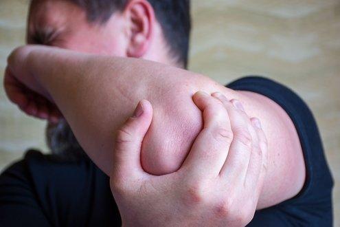 صورة متلازمة العصب الزندي