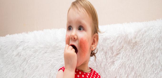 صورة التدابير العلاجية للأكزيما التي تصيب الأطفال