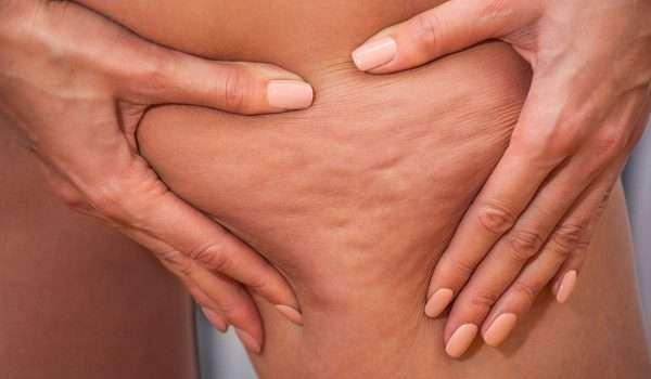 صورة اسباب السيلوليت أو متلازمة قشرة البرتقال وكيفية التخلص من هذه المشكلة