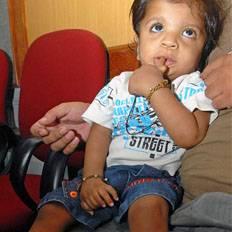 صورة بالصور | طفل هندى يحطم الرقم القياسى فى عامة الاول بـ 34 اصبع فى يدية وقدمية