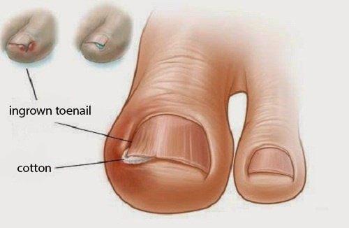 صورة الظفر الناشب – 6 علاجات طبيعية قديمة لأظافر القدم الناشبة