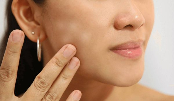 صورة ازالة بقع الوجه بالأدوية والطرق الطبيعية والوقاية منها