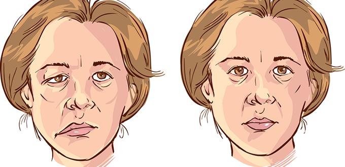 صورة شلل الوجه النصفي يتسبب بضعف مفاجئ لعضلات الوجه