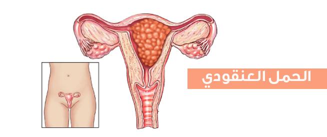 الحمل العنقودي،اسباب اعراض وعلاج الحمل العنقودي