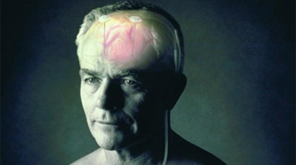 صورة الصرع ما هو وكيف يمكن تشخيصه و علاجه؟