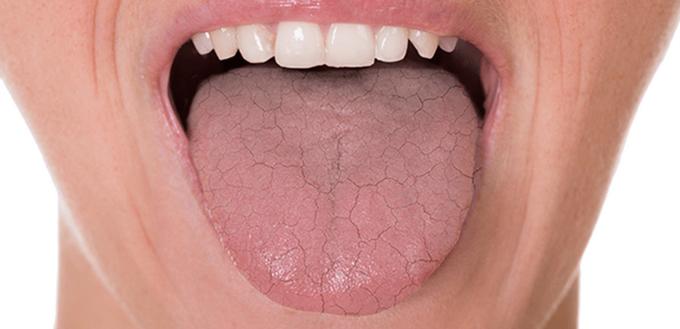 صورة علاج جفاف الفم بالاعشاب