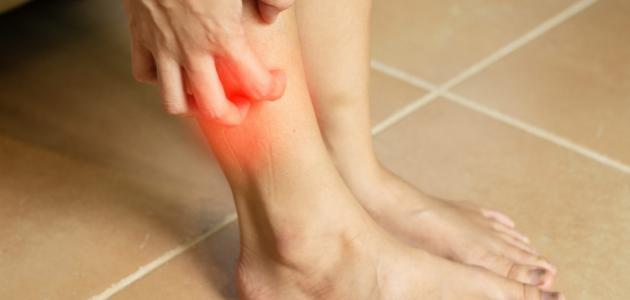 صورة أسباب حساسية الجلد المفاجئة