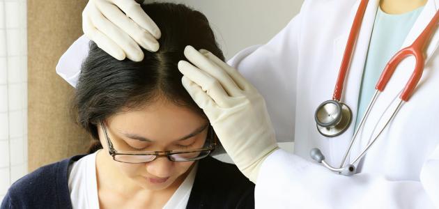 صورة أضرار قشرة الشعر