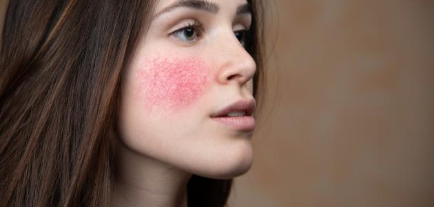 صورة علاج مرض الوردية