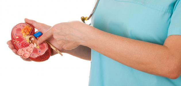 صورة أعراض وعلاج حصى الكلى