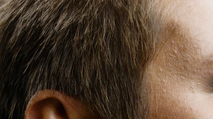 صورة أنواع جراحة زراعة الشعر