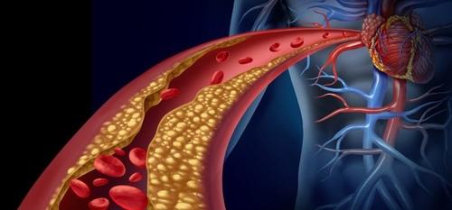 صورة المبادئ التوجيهيبة الجديدة حول مستويات الكوليسترول وصحة القلب