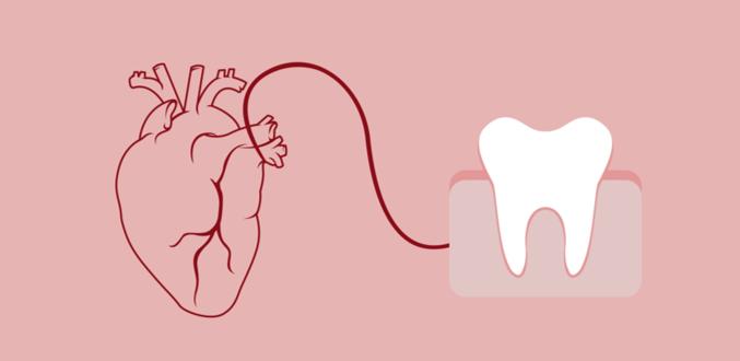 صورة علاقة صحة الاسنان واللثة بأمراض القلب