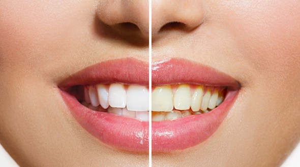 صورة تغير لون الأسنان: الأسباب و العلاج