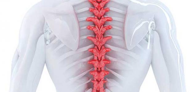صورة أعراض التهاب النخاع الشوكي