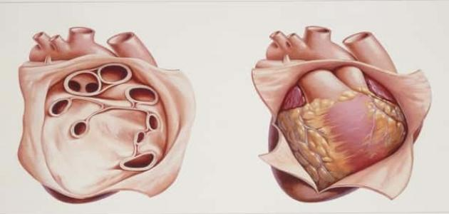 صورة أعراض التهاب غشاء التامور