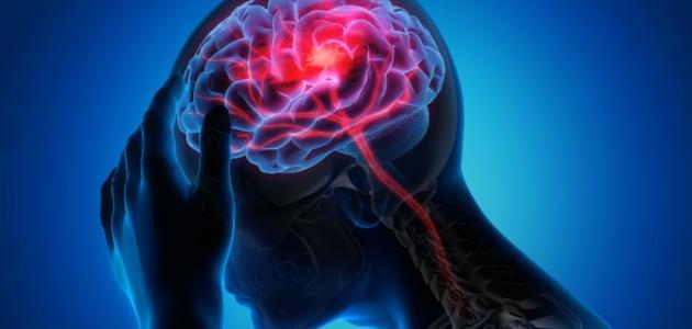 صورة أعراض الجلطة الدماغية عند الشباب