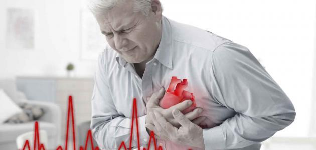 صورة أعراض الذبحة الصدرية