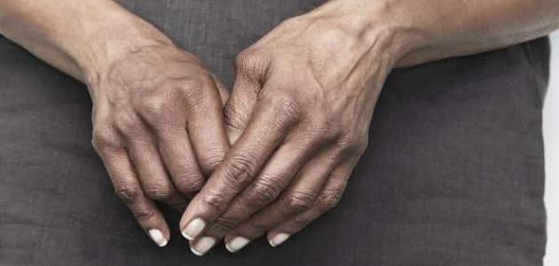 صورة أعراض الروماتيزم