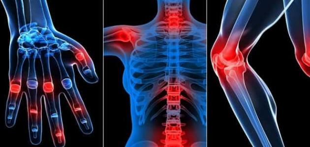صورة أعراض الروماتيزم في العظام
