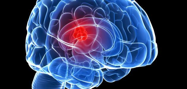 صورة أعراض الورم في الرأس