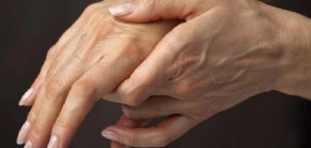 صورة أعراض انسداد شرايين اليد