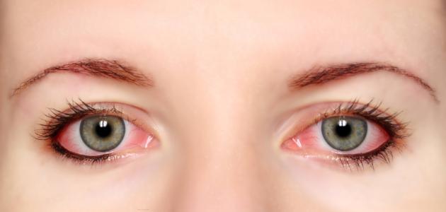 صورة أعراض حساسية العين