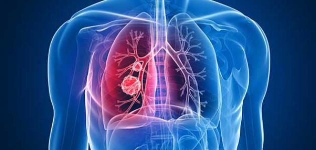 صورة أعراض سرطان الرئة المتقدمة