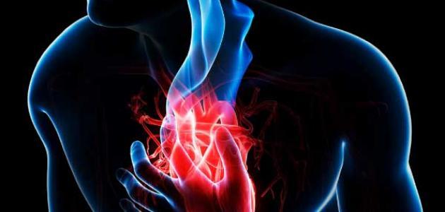 صورة أعراض كهرباء القلب
