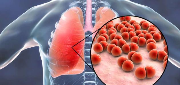 صورة أعراض مرض السل