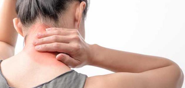 صورة أعراض مرض الفيبروميالغيا