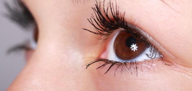 صورة أكثر أمراض العيون انتشاراً