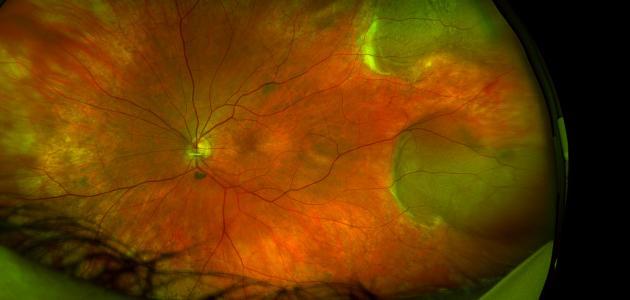صورة أمراض شبكية العين وعلاجها