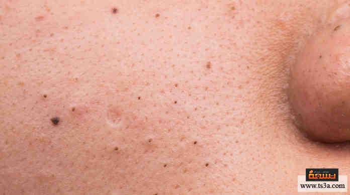 صورة كيف تعالج حبوب الوجه وتقلل من الآثار الدائمة لها؟