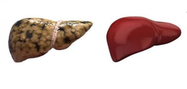 صورة طرق علاج الدهون على الكبد