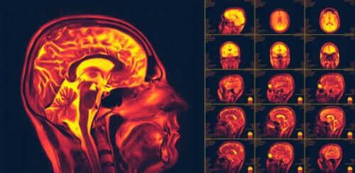 صورة لدونة المخ العصبية – ما هي وما هي أهميتها؟