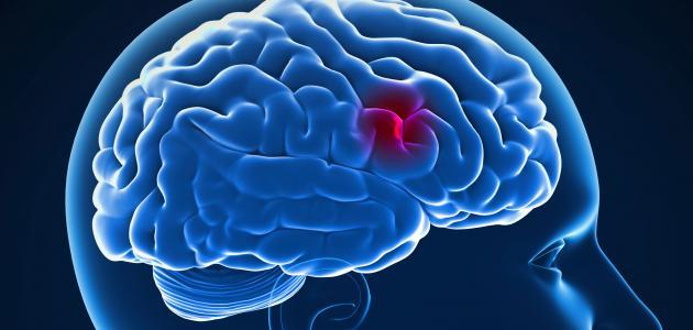 صورة ما هي أعراض جلطة الدماغ