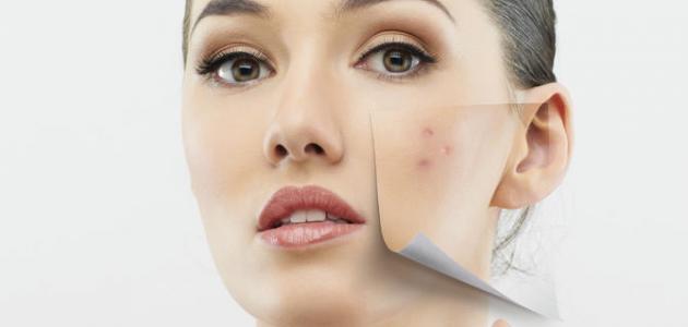 صورة هل نقص فيتامين د يسبب حبوباً في الوجه