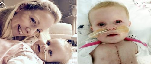 صورة جراح أردني يصنع معجزة جراحية تنقذ طفلة