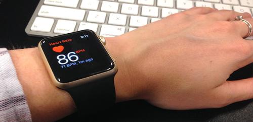 صورة هل تستطيع الساعة الذكية الكشف عن الرجفان الأذيني؟