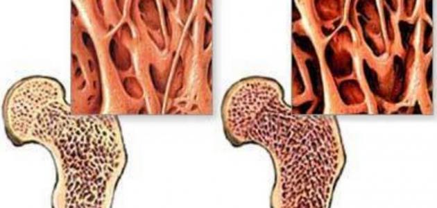 صورة أهمية الغضاريف للعظام