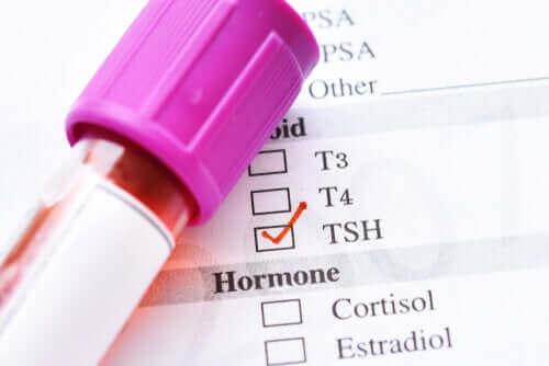 صورة الهرمون المنشط للدرقية – ما الأسباب التي تؤدي إلى انخفاض مستوياته؟