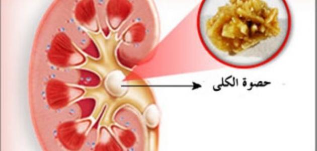 صورة ما هي أعراض رمل الكلى