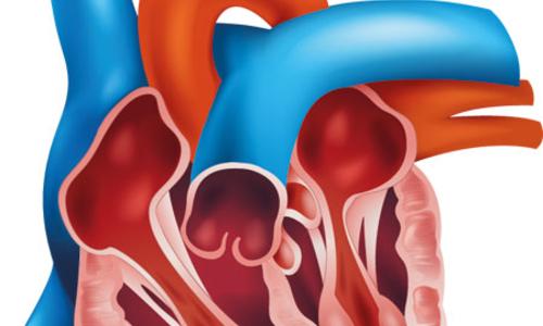 صورة منظمة الغذاء والدواء توافق على مضخة لمرضى القلب