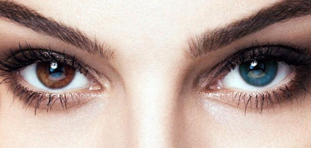 صورة تغير لون العين طبيعياً
